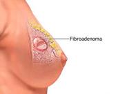Mastoplastica Additiva e Mastopatia Fibrocistica